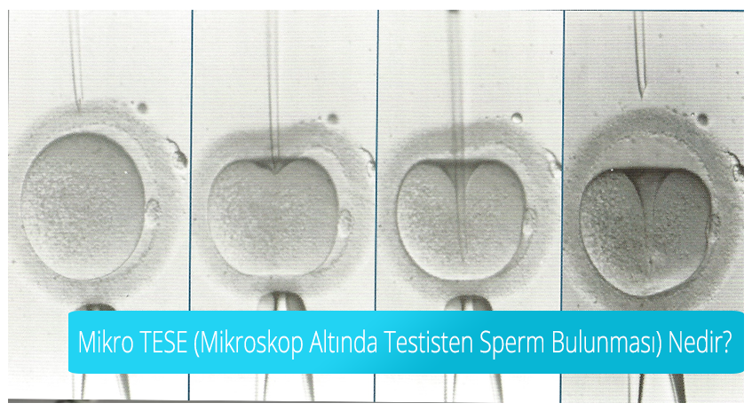What is Micro TESE (Detection of Sperm from Testis Under Microscope)?