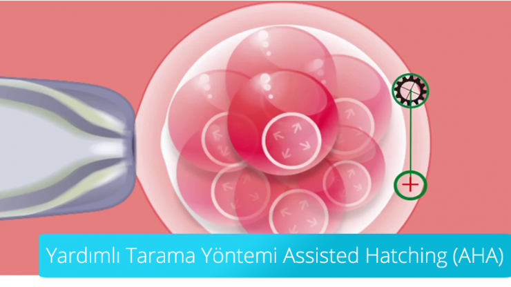 Yardımlı Tarama Yöntemi Assisted Hatching (AHA)