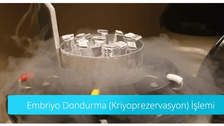 Embriyo Dondurma (Kriyoprezervasyon) İşlemi