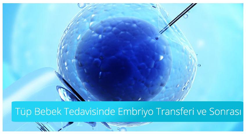 Tüp Bebek Tedavisinde Embriyo Transferi ve Sonrası