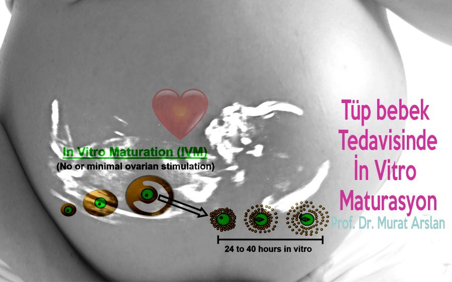 Tüp Bebek Tedavisinde in vitro maturasyon