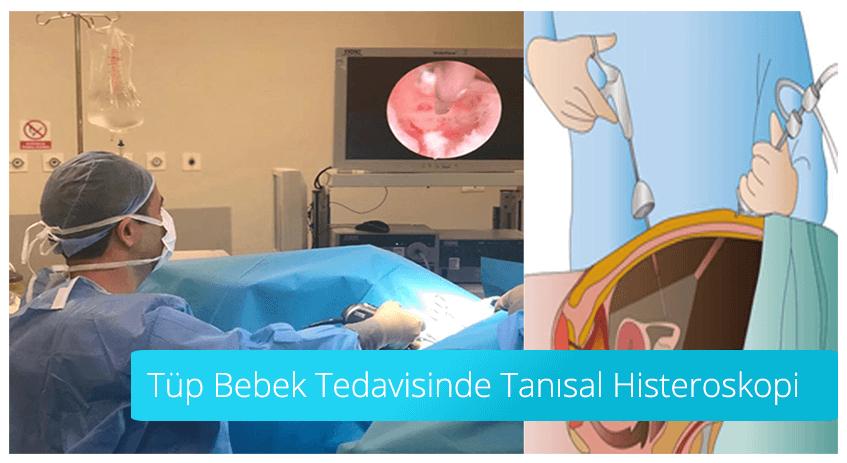 Tüp Bebek Tedavisinde Tanısal Histereskopi