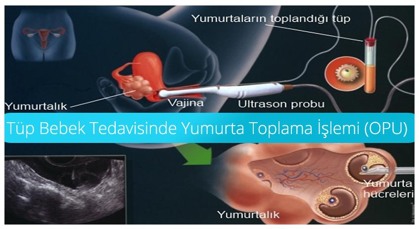 Tüp Bebek Tedavisinde Yumurta Toplama İşlemi (OPU)