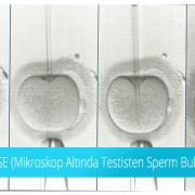 Mikro TESE (Mikroskop Altında Testisten Sperm Bulunması) Nedir?